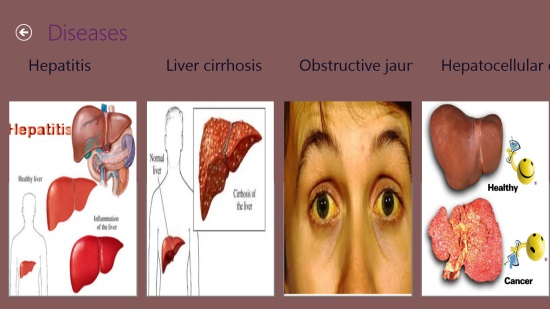 Home Doctor - Diseases under Liver category